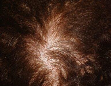 Okiem eksperta: jak skutecznie walczyć z łysieniem androgenicznym?