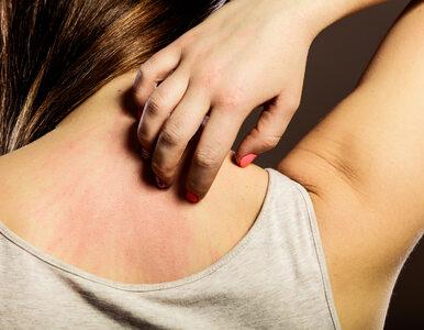 Łuszczyca – czy tą chorobą można się zarazić?