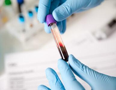 Niektóre grupy krwi  bardziej podatne na COVID-19?  Nowe badania naukowców