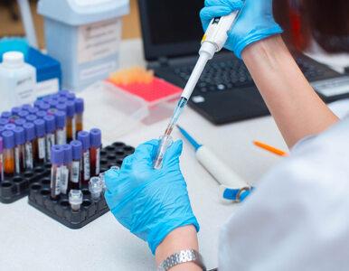 Koronawirus w Polsce. Ponad 300 nowych zakażeń i kolejne ofiary śmiertelne