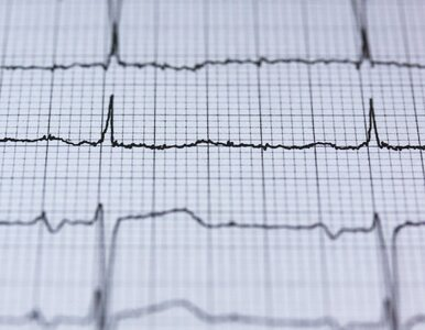 Innowacje w medycynie. Zapis EKG oceni komputer a nie kardiolog?