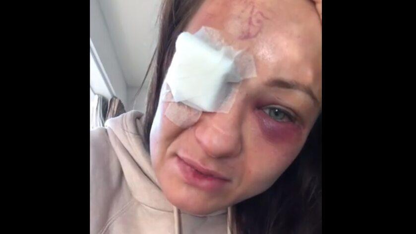 Karolina Kowalkiewicz po walce na gali UFC w Auckland