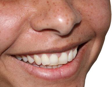 Jak pielęgnować usta zimą?
